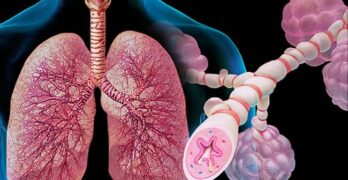 Asthma- Causes, Treatment & Prevention Methods
